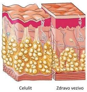 Kavitacija Uklanja Celulit